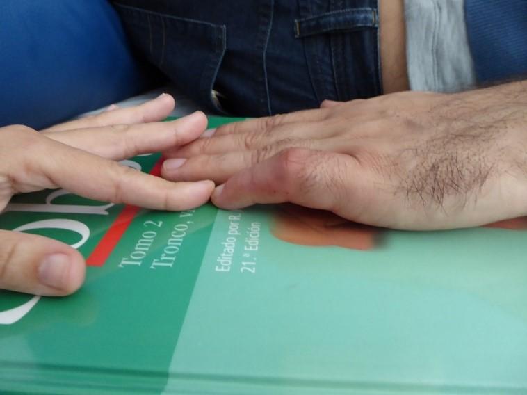 Artrolisis Ecoguiada Dedos Dr. Manuel Villanueva 1