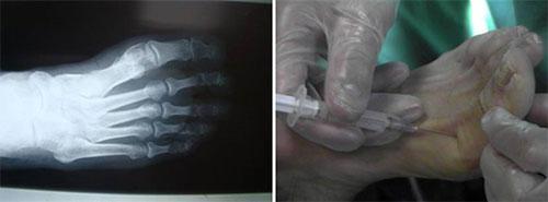 Artrolisis Ecoguiada para devolver la movilidad dedos rígidos
