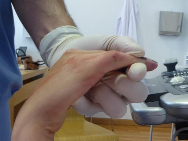 Artrolisis Ecoguiada de los dedos para quitar la rigidez de los mismos