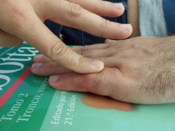Artrolisis Ecoguiada Dedos Dr. Manuel Villanueva