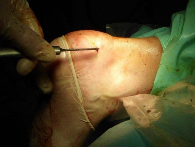 Enfermedad Haglund tratada con Cirugía ecoguiada. El paciente sale andando del hospital ese mismo día.