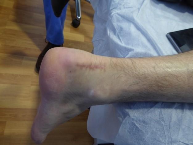 Enfermedad Haglund Cicatriz de Cirugía Convencional