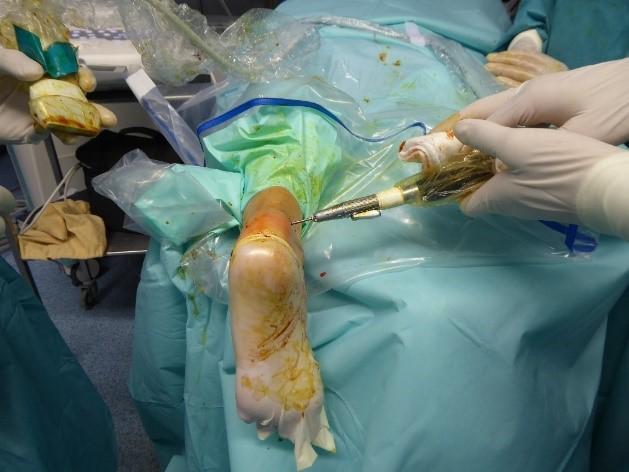 Enfermedad Haglund Cicatrices, de 1 mm, de operación ecoguiada con despegamiento del paratendón. El paciente sale andando del hospital ese mismo día.