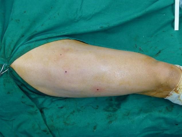 Síndrome Cicatricial adherencial por lesiones musculares