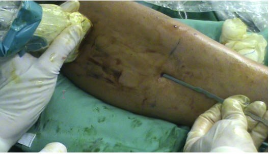 Sindrome Cicatricial adherencial. Avanfi. Cirugía Ecoguiada