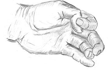 cirugía-ecoguiada-dedo-en-resorte realizada por el equipo de Avanfi