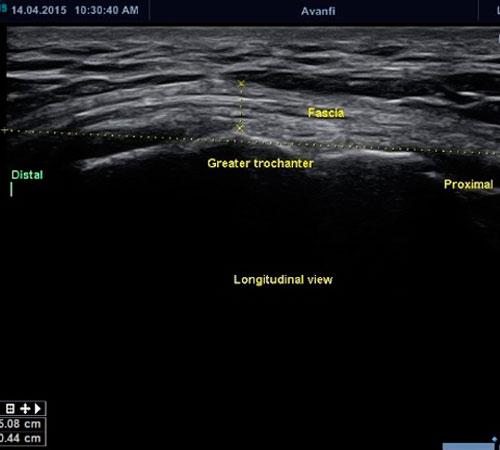 Cirugía-Ecoguiada-Cadera-en-Resorte Pionera en avanfi
