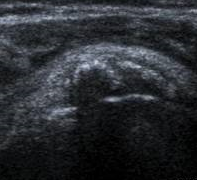 Tendinitis Calcificante del Hombro Radiografía