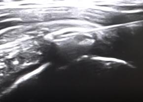 Tendinitis Calcificante del Hombro extracción de la calcificación vista ecográfica de la aguja