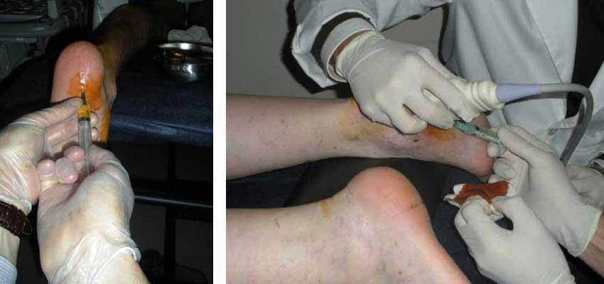 Tratamiento Ecoguiado con Plasma Rico Factores de Crecimiento PRP para la Fascitis bilateral