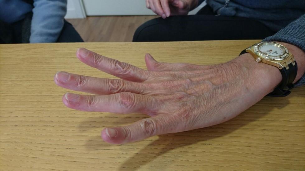 Artrolisis Ecoguiada de Artritis de la mano