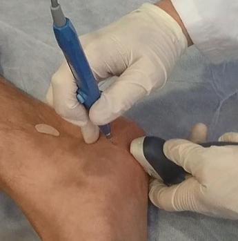 Tratamiento ecoguiado con Epi para la lesion de la fascitis plantar
