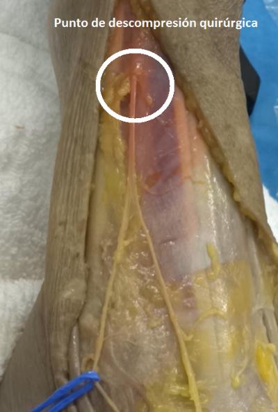 cirugía ecoguiada ultra mínimamente invasiva de la Comprensión-del-Nervio-Peroneo-Superficial
