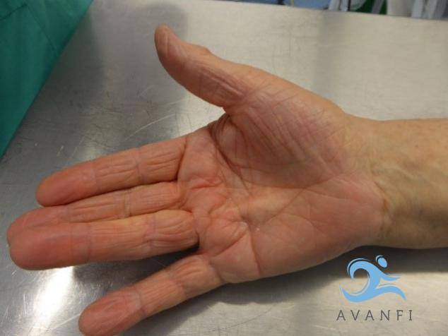 Paciente con Enfermedad de Dupuytren en mano derecha