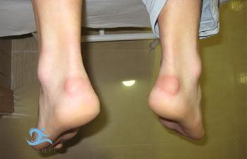 Imagen de un paciente con Enfermedad o deformidad de Haglund en ambos pies