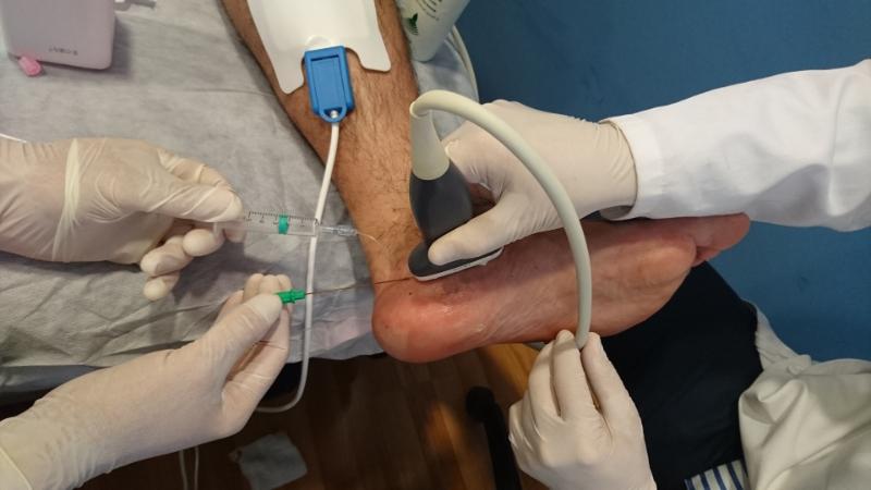 La neurolisis eléctrica es una técnica con muy buenos resultados y una solución al dolo del paciente, este procedimiento evita cirugías innecesarias o complejas