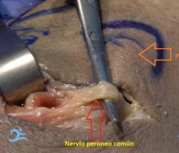 cirugía ecoguiada del atrapamiento del nervio peroneo común