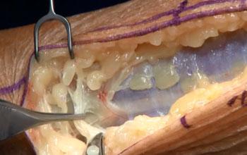 Cirugía convencional para la descompresión bilateral del nervio peroneo superficial