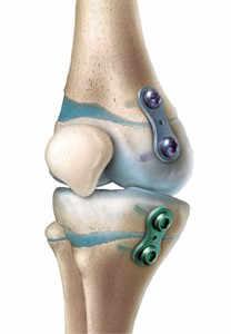 Cirugía de crecimiento guiado de extremidades inferiores
