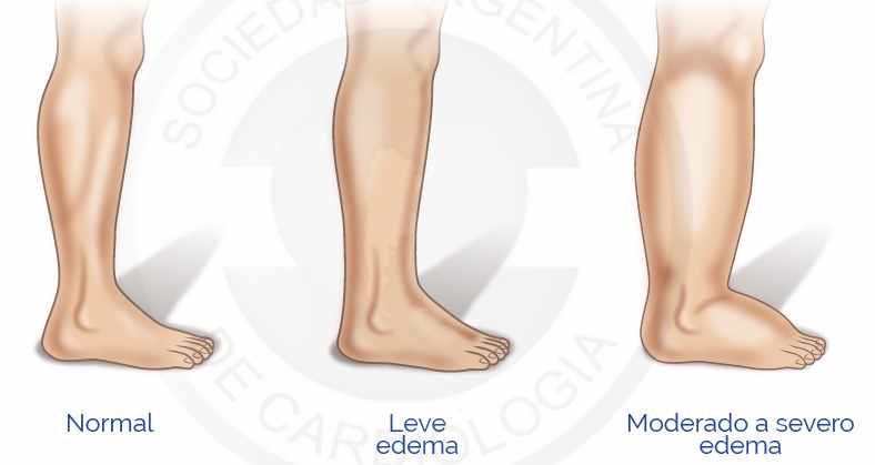 Que es y tipos de Edemas: El edema es la inflamación palpable producido por el aumento del volumen intersticial.