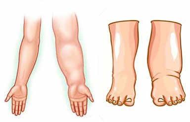 Un linfedema es un acumulo o hinchazón causado por el depósito de líquido en los tejidos (espacio intersticial) provocado por un mal funcionamiento del sistema linfático. Además de agua, contiene proteínas y otras sustancias.