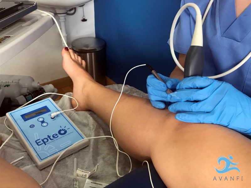 La técnica de EPTE produce una ablación electrolítica no termal que induce una respuesta inflamatoria controlada, permitiendo activar los mecanismos celulares implicados en la fagocitosis y en la regeneración del tejido blando dañado.