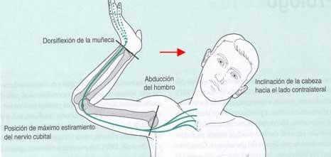 Ejercicio neurodinámico para el nervio cubital