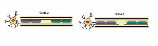En caso de axonotmesis (rotura parcial) o neurotmesis (rotura total), no realizaremos, por lo general, ejercicios de Neurodinámica