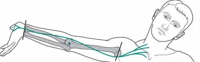 tratamiento con neurodinamia para atrapamientos nerviosos en Avanfi