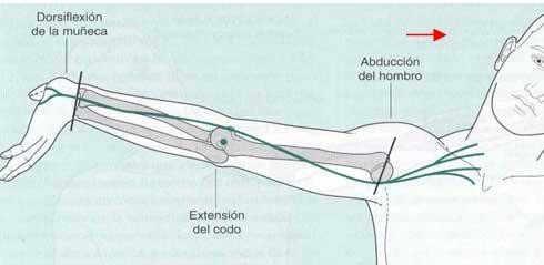 Ejercicio neurodinámico para el nervio mediano
