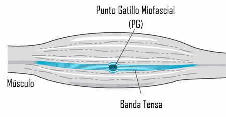 Las Bandas Tensas las podemos identificar mediante la palpación, por ecografía y por elastografía de resonancia magnética.