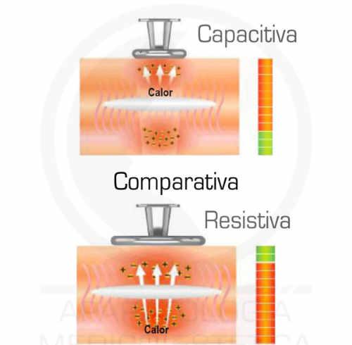 Imagen comparativa entre Electrodo Capacitivo y Resistivo de tecarterapia o diatermia