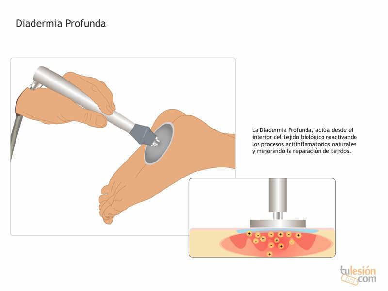 efectos físicos y biológicos tiene en nuestro cuerpo la terapia con diatermia