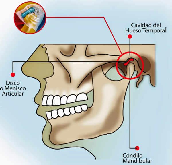 ¿Qué mecanismo produce el dolor en la articulación temporomandibular?