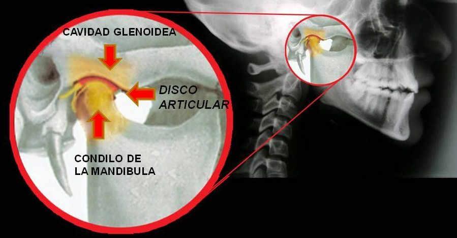La Articulación Temporomandibular o ATM es la articulación formada por el hueso temporal (en la base del cráneo) y la mandíbula o maxilar inferior