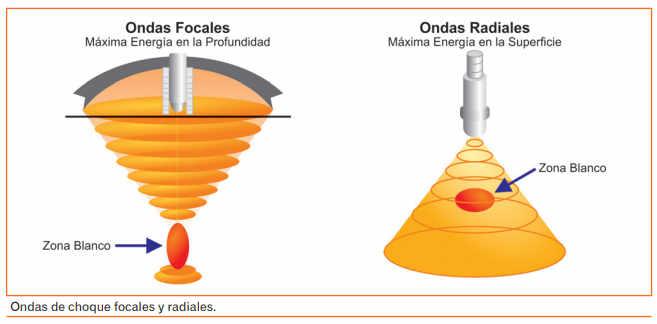 En los tratamientos de fisioterapia se utiliza dos tipos de ondas de choque: radiales y focales