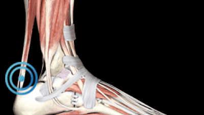 Según la evidencia científica, la terapia con ondas de choque sobre el tendón provoca cambios histológicos y biomecánicos