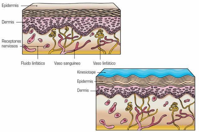 El Kinesiotape se utiliza para acompañar y complementar a los tratamientos sobre los músculos, tendones, ligamentos, articulaciones o sistema nervioso.
