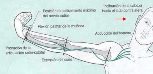fisioterapia para la tendinitis del manguito rotador