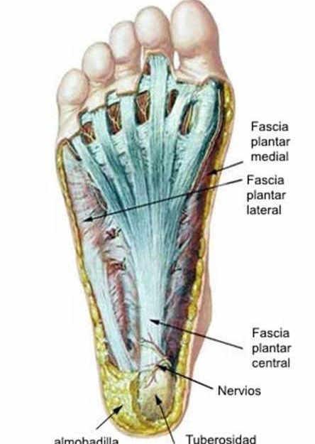 fisioterapia para la fascitis plantar