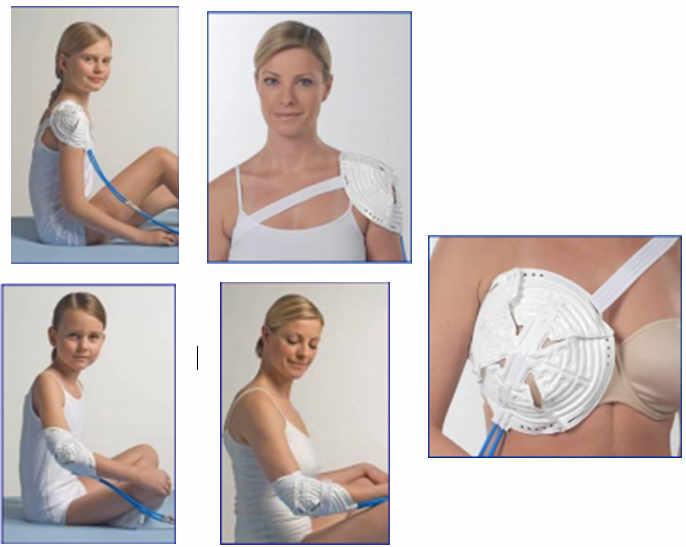 Técnica de Hiloterapia