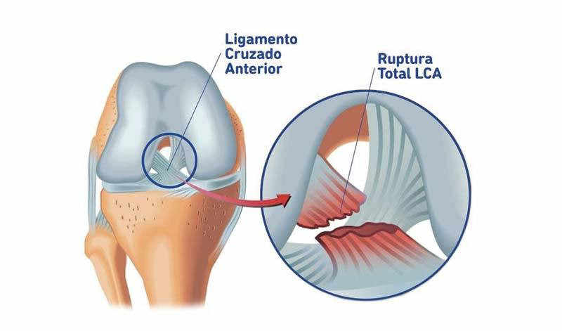 fisioterapia para la lesión del ligamento cruzado anterior de rodilla