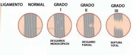 Grados de lesiones del ligamento cruzado anterior de rodilla