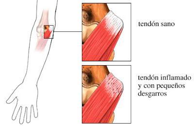 Mecanismos de lesión de la Epicondilitis