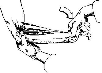 Test de Cozen para la Epicondilitis