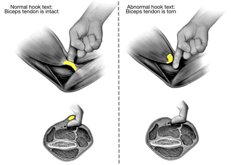 Hook Test: rotura distal del tendón del bíceps braquial en la epicondilitis