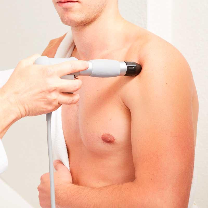 ondas de choque como tratamiento fisioterapéutico