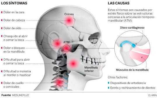 ATM para la Cervicalgia o dolor cervical y dolor de cuello