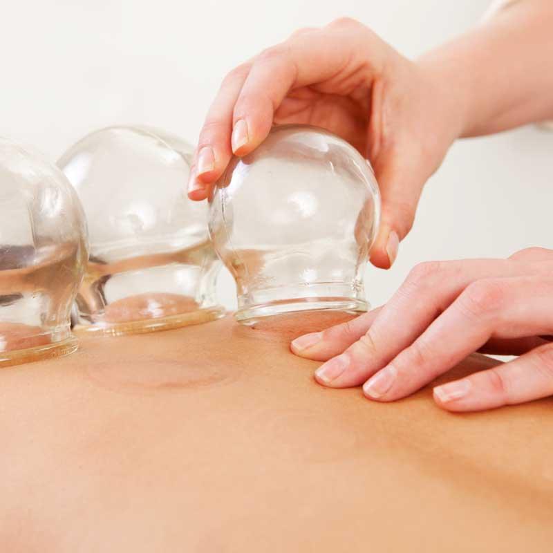 especialistas-en-fisioterapia-con-cupping