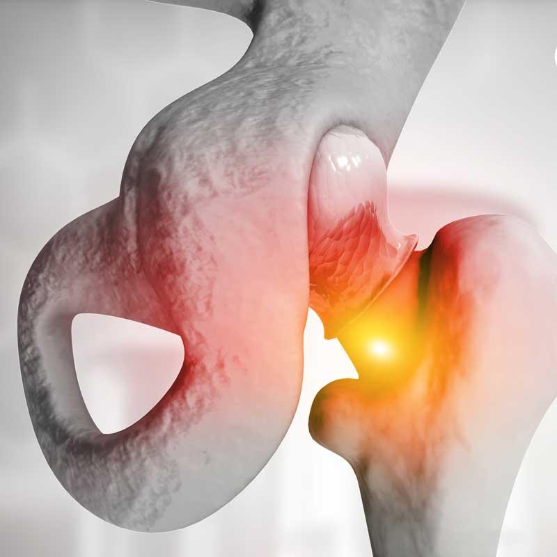 especialistas-en-prótesis-de-cadera y cirugías complejas de cadera